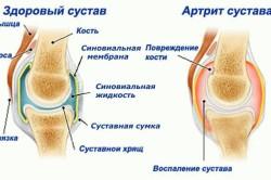 Сравнение здорового сустава и артрита