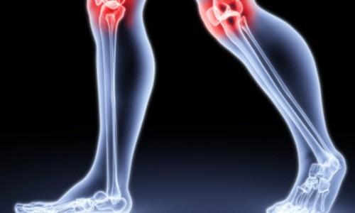 Проблема артрита коленных суставов