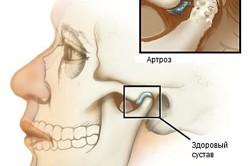 Схема артроза челюстно-лицевого сустава