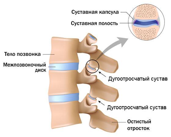 Артроз дугоотросчатых суставов и его лечение