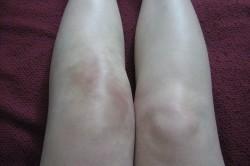 Опухание колена при артрите