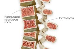 Сравнение здоровой кости и остеопороза