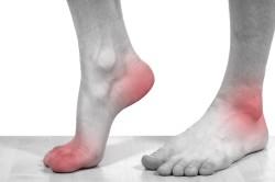 Сильный болевой синдром в пальцах ног