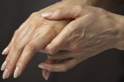 Ревматоидный артрит - причина сколиоза