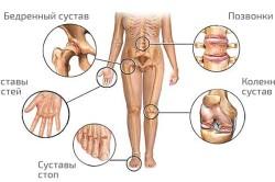 Места проявления полиартрита