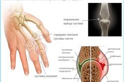 Симптомы развития артрита