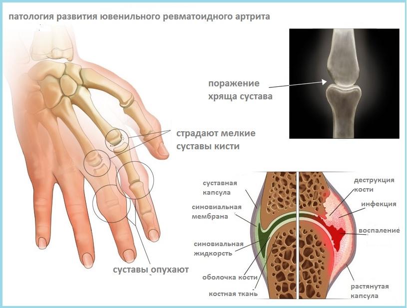 simptomi-artrita-kistey-ruk-pri-psoriaze