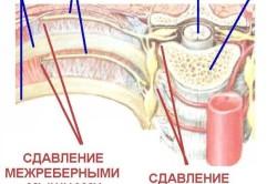 Схема межреберного остеохондроза