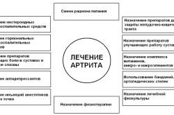 Схема лечения артрита