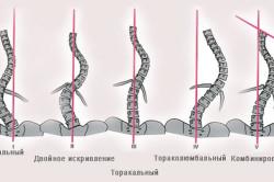 Формы сколиоза