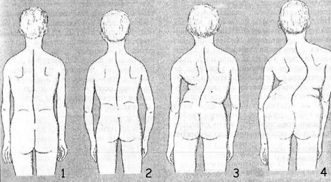 Правосторонний сколиоз лечение с помощью упражнений