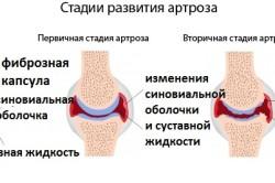 Стадии артроза