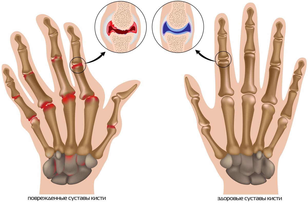 Почему возникает артрит челюстно-лицевого сустава и как