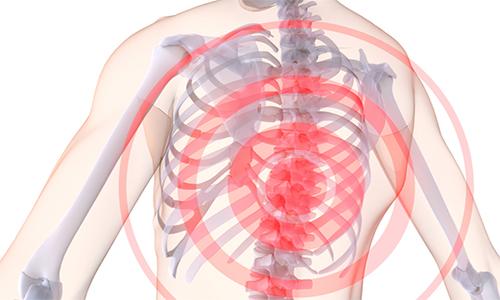 Проблема остеохондроза грудного отдела позвоночника