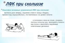 Комплекс основных упражнений ЛФК при сколиозе