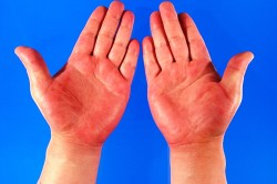 Покраснение кожных покровов - причина отложений солей в суставах