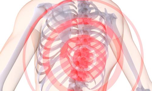 Шейно грудной остеохондроз симптомы лечение