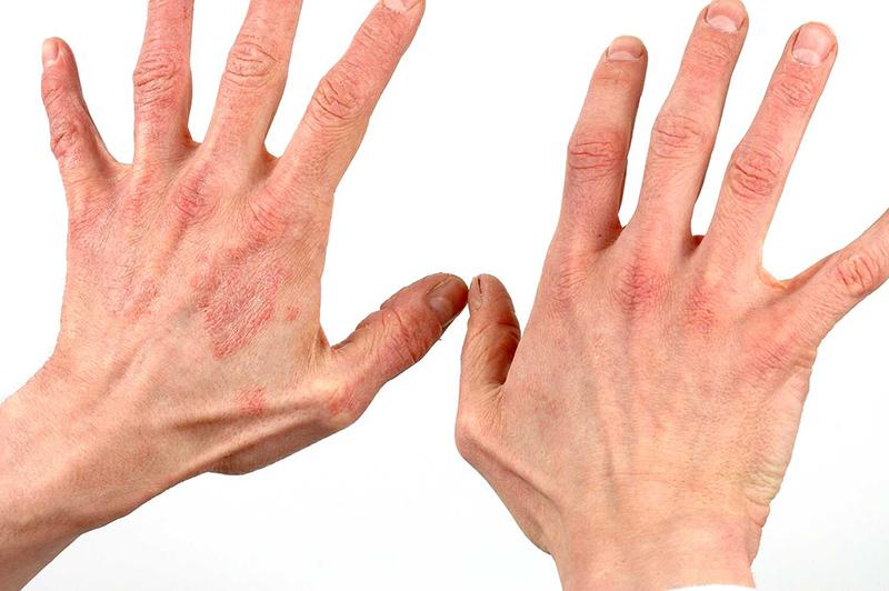 симптомы псориаза на руках фото