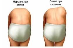 Визуальная диагностика сколиоза