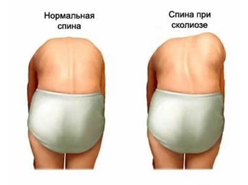 Упражнения от кифоза и сколиоза