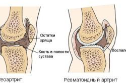 Остеоартрит и ревматоидный артрит