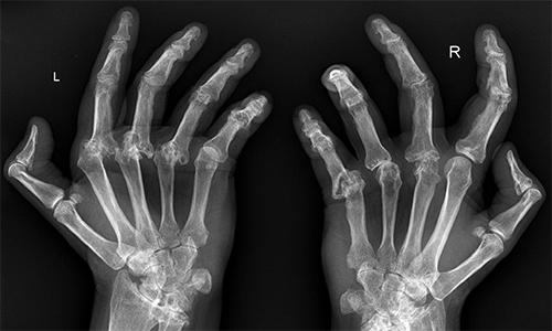 Серопозитивный ревматоидный артрит кистей рук