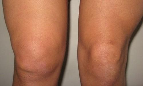 Проблема артрита коленного сустава у детей