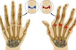 Изменения при артрите суставов кисти
