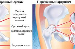 Здоровый и пораженный артритом тазобедренный сустав