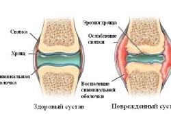 Схема артрита