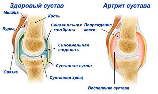 Лечение и профилактика артрита и артроза