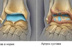 Нормальный сустав и сустав с артрозом