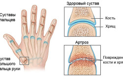 Схема артроза пальцев рук