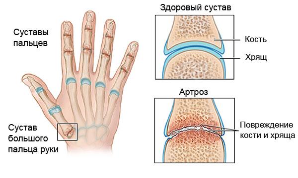 Боли в суставах при климаксе лечение