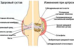 Здоровый коленный сустав и пораженный артрозом