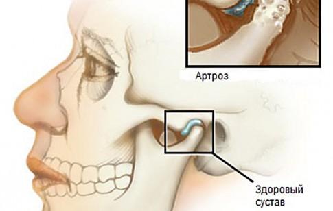 Челюстной артрит симптомы и лечение Суставы
