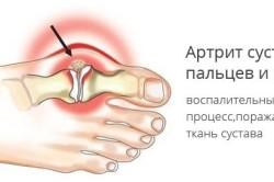 Схема артрита стопы
