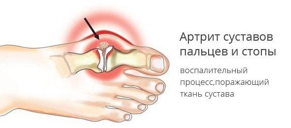 Лечение Суставов Хозяйственным Мылом? - INWARS.RU