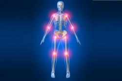 Места поражения артритом