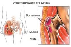Тазобедренный сустав, пораженный бурситом