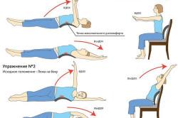 Лечебная физкультура при смещении межпозвоночного диска