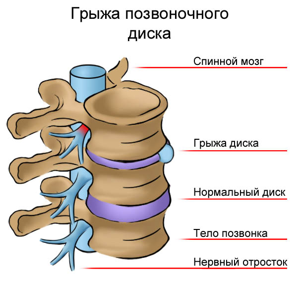 Как лечить остеохондроз позвоночника грудного отдела позвоночника