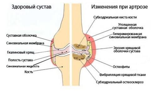 izmeneniya-pri-artroze2-500x300