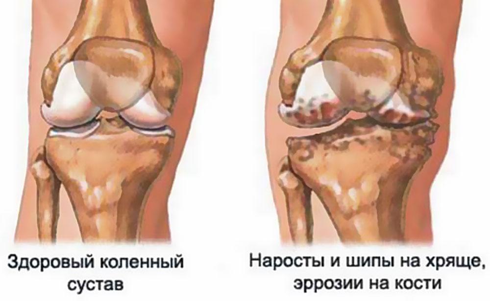 Опухоль кости