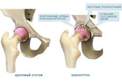 Схема коксартроза