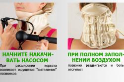 Принцип действия шейного корсета при остеохондрозе
