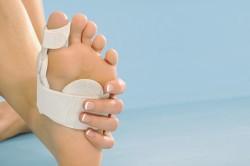 Накладки для лечения бурсита стопы
