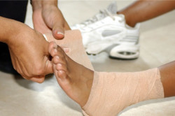 Фиксация голеностопа при артрозе
