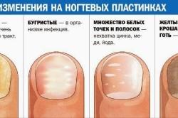 Виды повреждения ногтевых пластин