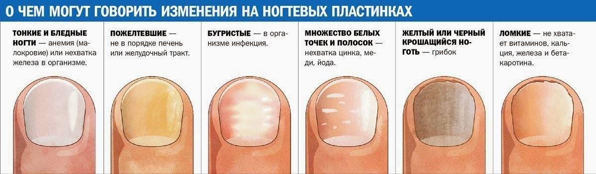 Почему ногти растут неровными